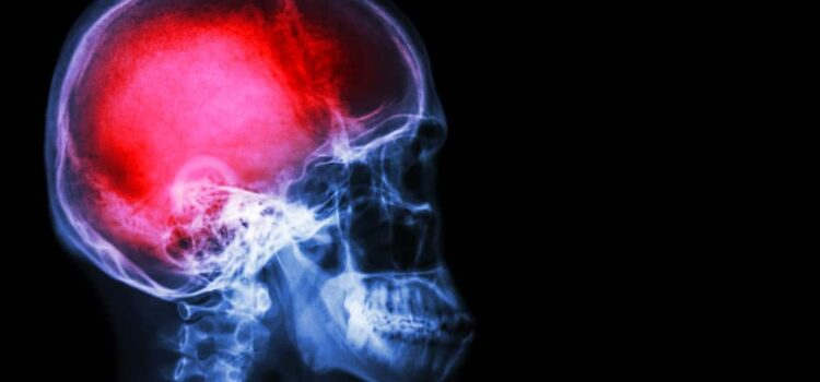 study-on-mdma-for-traumatic-brain-injury-boosted-by-$1.5m-donation