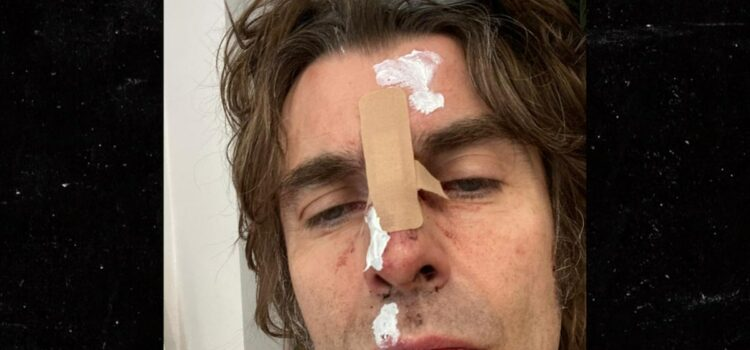Liam Gallagher Injures Face After Helicopter Fall